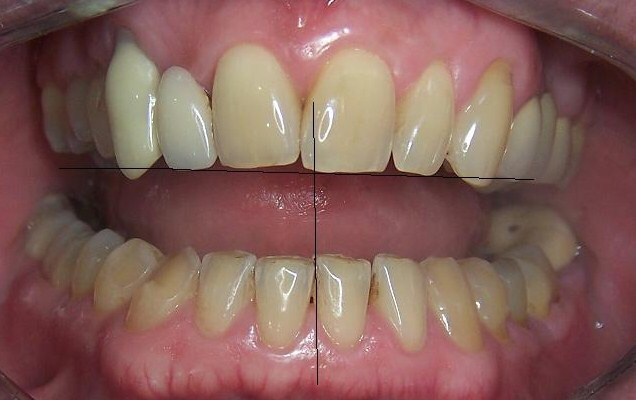 A careful examination revealed that there's a midline shift to the right and worn off  of his lower teeth.