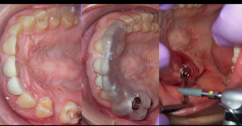 Single tooth implant using Guided Surgery. Our technique of choice.