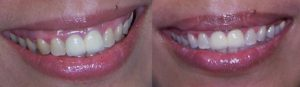 A before (left) and after (right) picture after teeth whitening treatment